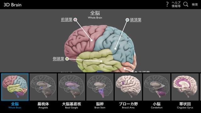 3d_brain_001